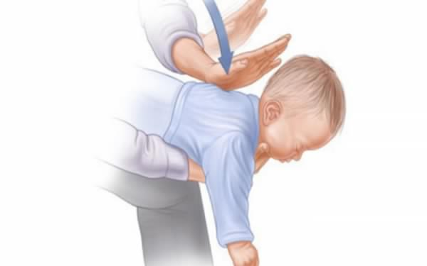 Image of Every Parent's Nightmare: How To Save Your Baby From Choking Within 3 Minutes – Watch The Video!