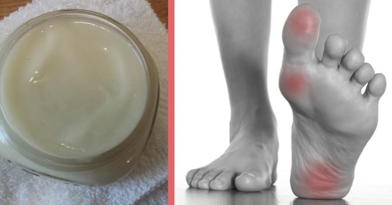 Image of Rub This Homemade Magnesium Lotion On Your Skin to Reverse Muscle and Leg Pains Starting in Hours