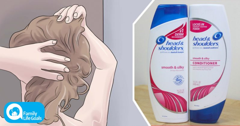Image of How to naturally get rid of dandruff without POISONING your scalp with toxic P&G shampoo