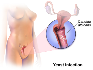 Yeast_Infection
