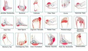 foot-pain-diagram