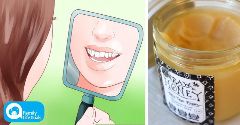 Image of 3 simple food swaps that can stop your teeth from going crooked