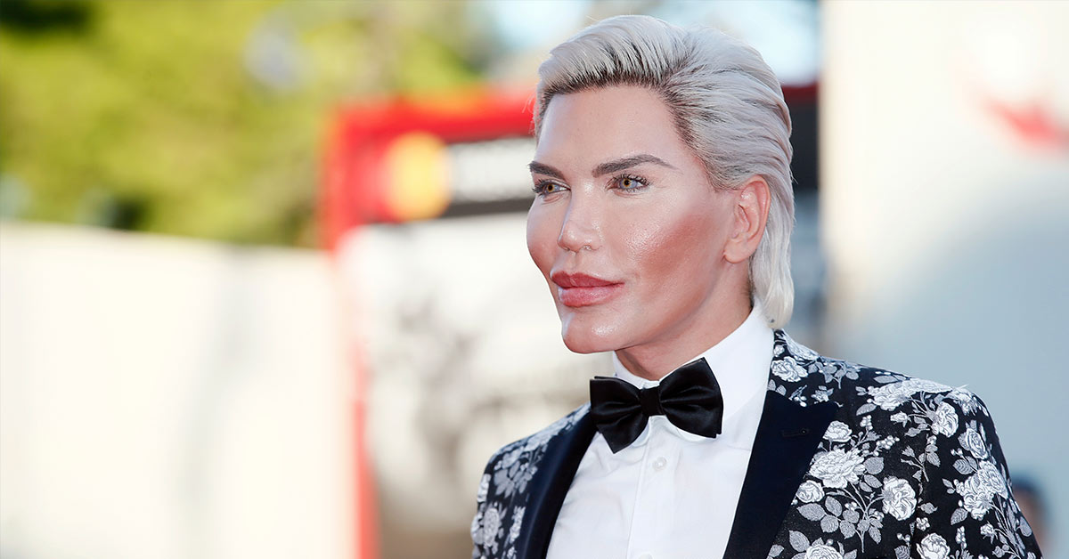 The Human Ken Doll Has Spent Over $750,000 On 72 Cosmetic Surgeries And Is At Risk