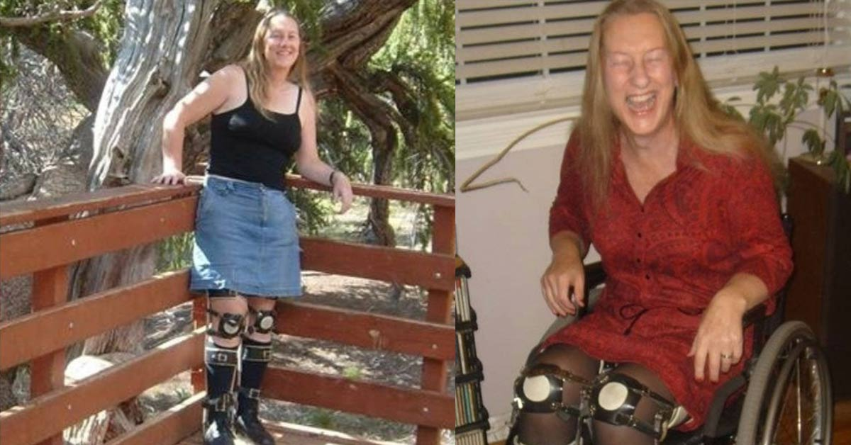 This healthy woman wants to sever her nerves so she can live as a disabled person for life