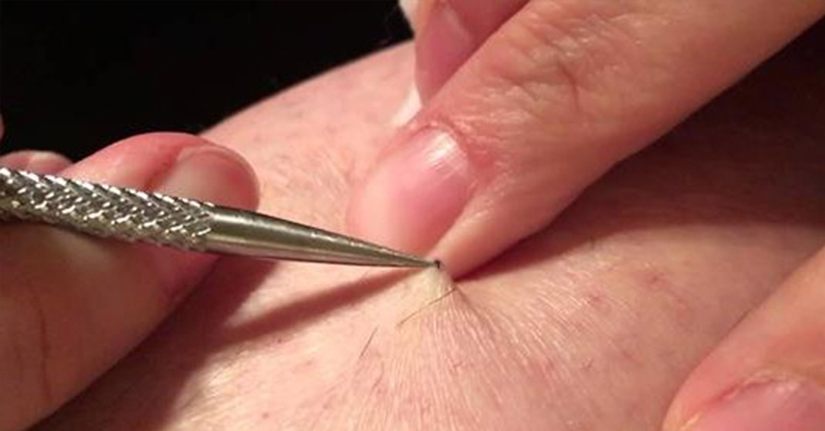 Man's Leg Is Itchy In One Spot, Then He Discovers A 3-Year Old Stitch And Starts Pulling It